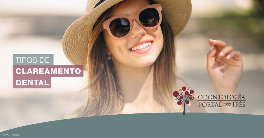 Tipos de clareamento dental - Odontologia Portal dos Ipês