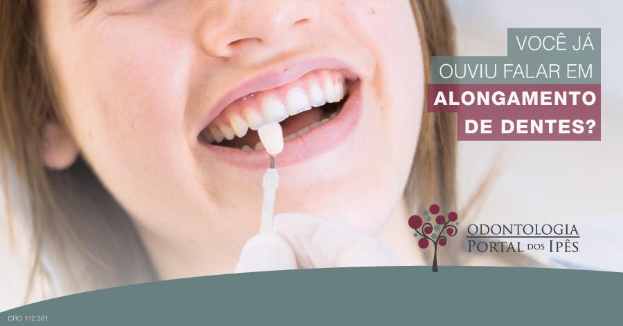Você já ouviu falar em alongamento de dentes? - Odontologia Portal dos Ipês