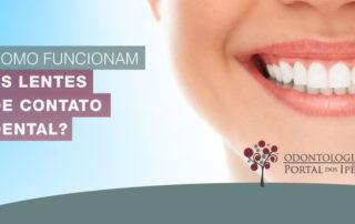 Como funcionam as lentes de contato dental? - Odontologia Portal dos Ipês