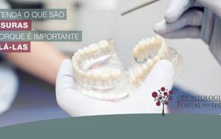 Entenda o que são fissuras e porque é importante selá-las - Odontologia Portal dos Ipês